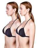 Woman`s body before and after weightloss. Woman`s body before and after weightloss over white background Royalty Free Stock Photography