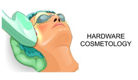 The woman`s face during machine cosmetology Royalty Free Stock Photos