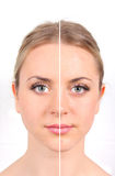 Before and after. Woman's face on white background Stock Photo