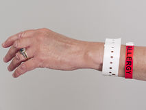 Woman's hand with Allergy wristband Stock Image