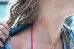 Woman's neck with jelly fish bite. Closeup of woman's neck with jelly fish bite Royalty Free Stock Photos