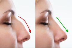 Woman`s Nose Before And After Plastic Surgery. With Red And Green Arrows royalty free stock images