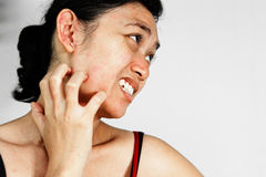 Woman scratch face with skin rash Stock Photo