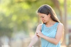 Free Woman Scratching Arm Because It Stings Stock Images - 152011544