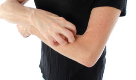 Woman scratching her arm Royalty Free Stock Photography