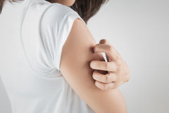 Woman scratching her arm. Royalty Free Stock Photography
