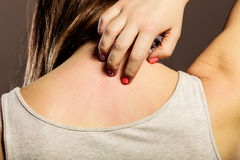 Woman scratching her back closeup Royalty Free Stock Image