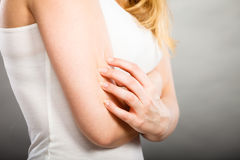 Woman scratching her itchy arm with allergy rash. Health problem, skin diseases. Young woman scratching her itchy arm with allergy rash Royalty Free Stock Photos