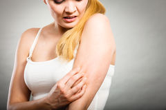 Woman scratching her itchy arm with allergy rash. Health problem, skin diseases. Young woman scratching her itchy arm with allergy rash Stock Photos