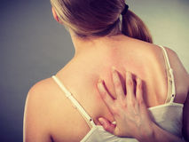 Woman scratching her itchy back with allergy rash Stock Photography