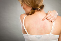 Woman scratching her itchy back with allergy rash Royalty Free Stock Image