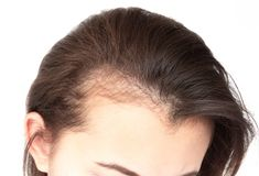 Free Woman Serious Hair Loss Problem For Health Care Shampoo And Beau Royalty Free Stock Images - 127698449