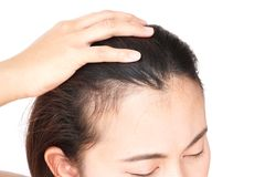 Woman serious hair loss problem for health care shampoo and beau. Ty product concept Stock Images