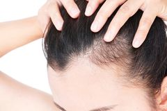 Woman serious hair loss problem for health care shampoo and beau. Ty product concept Stock Photography