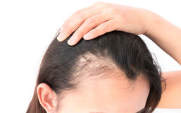 Woman serious hair loss problem for health care shampoo and beau Royalty Free Stock Photography