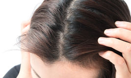 Woman serious hair loss problem for health care shampoo and beau stock image