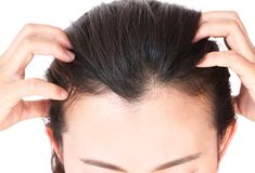 Woman serious hair loss problem for health care shampoo and beau. Ty product concept Stock Image