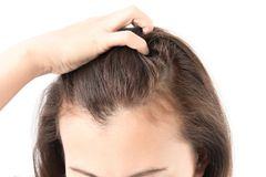 Woman serious hair loss problem for health care shampoo and beau Stock Photos
