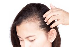Woman serious hair loss problem for health care shampoo and beauty product concept, selective focus stock photography