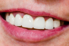 Woman with shiny smile and white teeth Royalty Free Stock Photo