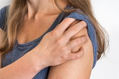 Woman with shoulder pain is holding her aching arm. Body pain concept royalty free stock image