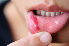 Woman show her lower lip of mouth with injury Stock Photo