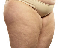 Woman showing her cellulite Stock Images