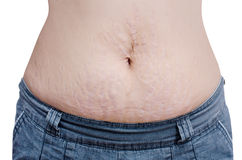 Woman showing her stretch marks Royalty Free Stock Photos