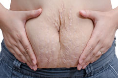 Woman showing her stretch marks Stock Photo