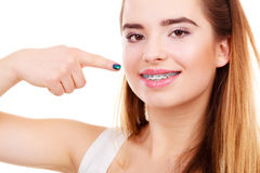 Woman showing her teeth with braces. Dentist and orthodontist concept. Woman smile showing her white teeth with blue braces Stock Images