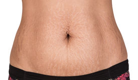 Woman showing stretch marks. Royalty Free Stock Photo
