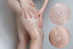 Woman shows leg with varicose veins. Magnifying the image. The concept of human health and disease