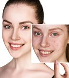 Woman shows photo with bad skin before treatment. Woman shows photo with bad skin before treatment isolated on white. Skincare concept Stock Images