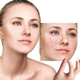 Woman shows photo with bad skin before treatment. Woman shows photo with bad skin before treatment isolated on white. Skincare concept Royalty Free Stock Image