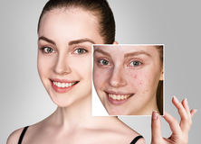 Woman shows photo with bad skin before treatment. Royalty Free Stock Image