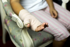 Woman sitting on a chair with Splint broken bone on her hand Stock Photos
