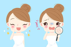 Woman with skin dry. Cartoon woman with skin dry and feel bad Stock Images