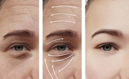Woman skin face wrinkles effect surgery contrast results correction before and after procedures, arrow. Woman face skin wrinkles correction before and after stock photos