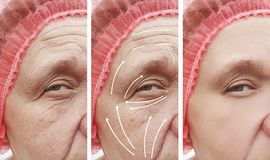 Woman skin face wrinkles surgery contrast patient results correction before and after procedures, arrow. Woman face skin wrinkles correction before and after stock image