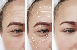 Woman skin face wrinkles surgery contrast results correction before and after procedures, arrow. Woman face skin wrinkles correction before and after , arrow royalty free stock photography