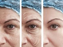 Woman skin wrinkles removal before cosmetology after collage cosmetology regeneration treatments contrast. Woman adult skin wrinkles before and after removal stock image
