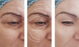 Woman skin wrinkles removal before difference cosmetology after collage cosmetology regeneration treatments contrast. Woman adult skin wrinkles before and after royalty free stock image