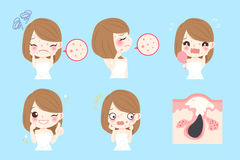 Woman with skincare problem. Cartoon woman with acne before and after Stock Photography