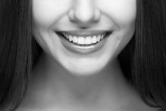 Woman smile. Teeth whitening. Dental care. Beautiful woman smile. Teeth whitening. Dental care Stock Photos