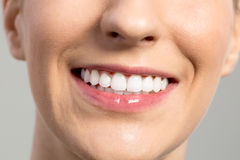Woman smile, Teeth whitening, Dental care Stock Image
