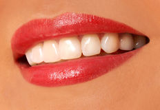 Woman smile. white teeth. Stock Images