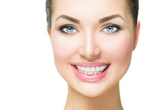Woman smiling with ceramic braces on teeth stock photo