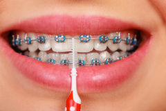 Woman smiling cleaning teeth with braces. Dentist and orthodontist concept. Young woman smiling cleaning and brushing teeth with blue braces using toothbrush Stock Photos
