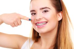Woman smiling showing teeth with braces. Dentist and orthodontist concept. Young woman smiling showing teeth with blue braces royalty free stock photo