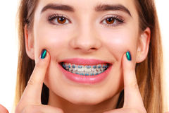 Woman smiling showing teeth with braces. Dentist and orthodontist concept. Young woman smiling showing teeth with blue braces Stock Photo